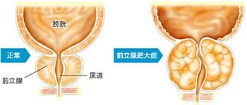 正常な前立腺と肥大した前立腺の比較図